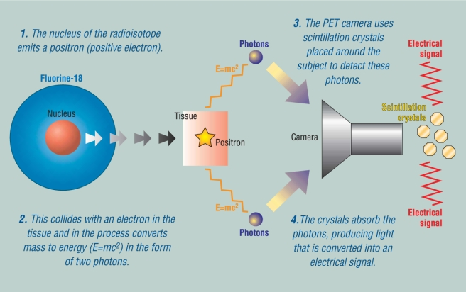 How it Works: Positron Emission Tomography